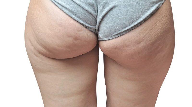 Come Eliminare La Cellulite In Poco Tempo Da Cosce E Glutei Come Fare Online