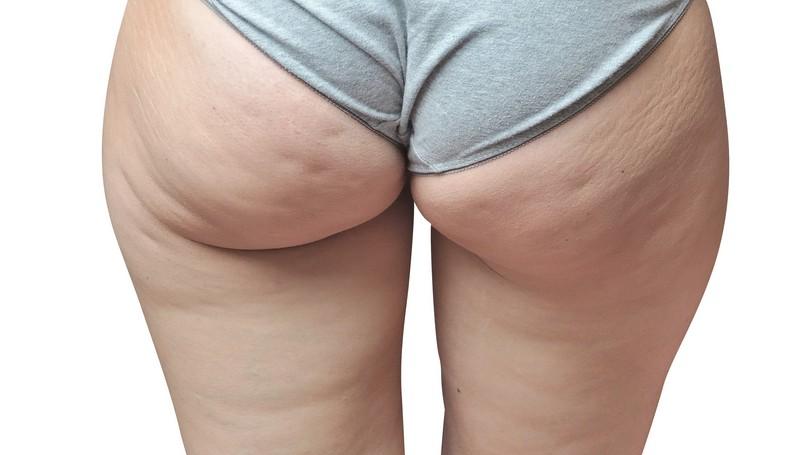 esercizi per perdere il grasso tra le gambe