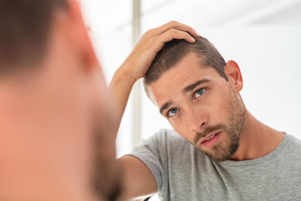 Come fare per contrastare la perdita dei capelli nell'uomo ...